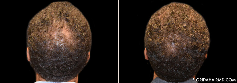 Results Of Hair Restoration Treatment