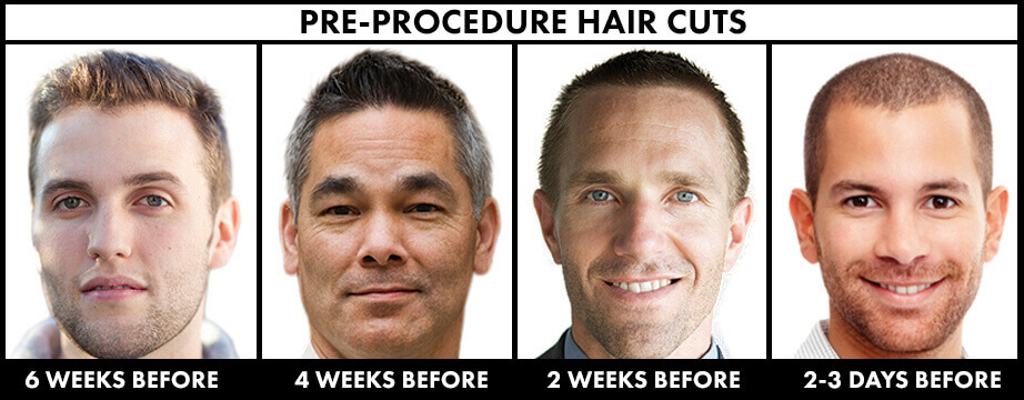 Pre-Procedure Hair Cuts