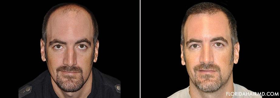 Hair Restoration Procedure Before & After
