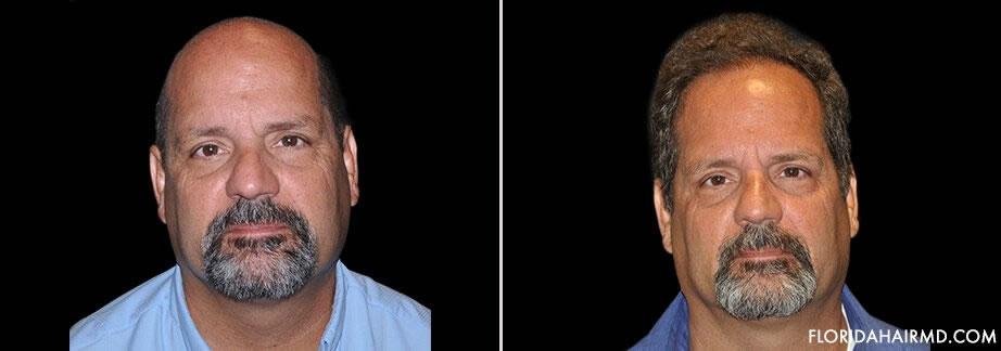 Results Of Hair Restoration